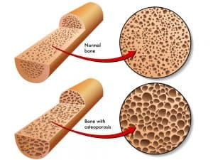 bone with osteoporosis